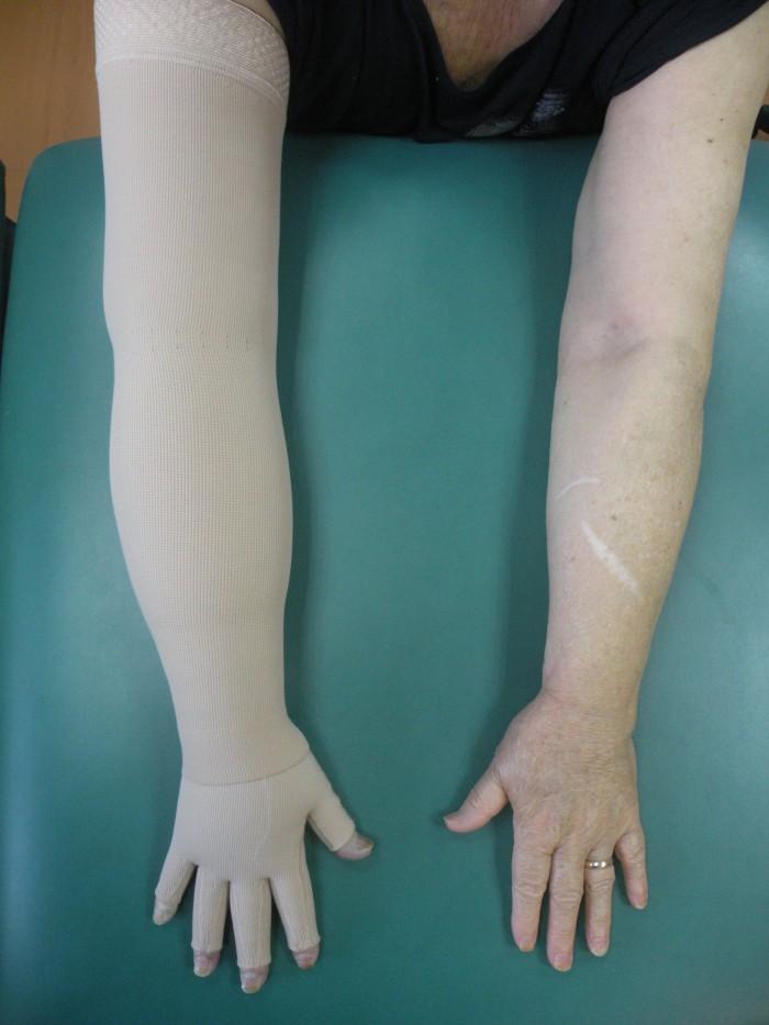 Λεμφοίδημα και θεραπεία 6