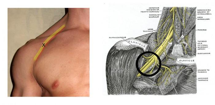 Brachial plexus 2
