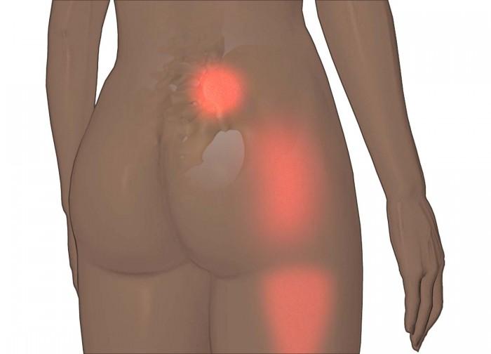 sacroiliitis-pain